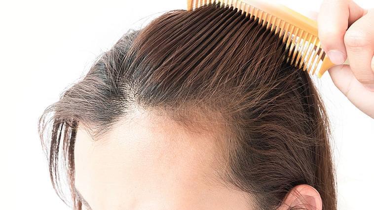 hair loss 2020